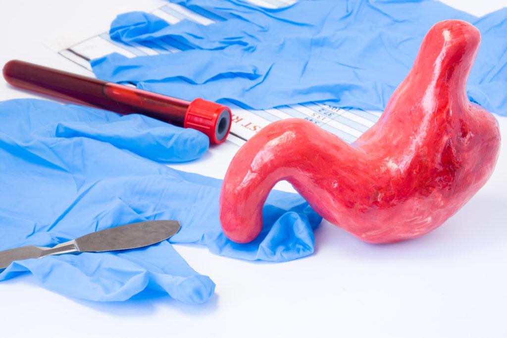 ניתוח מיוטומיה - כירורג פרטי סלבה ברד
